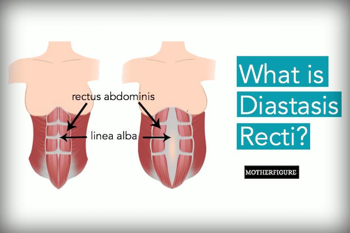 What is Diastasis Recti?