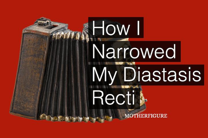 How I Narrowed my Diastasis Recti
